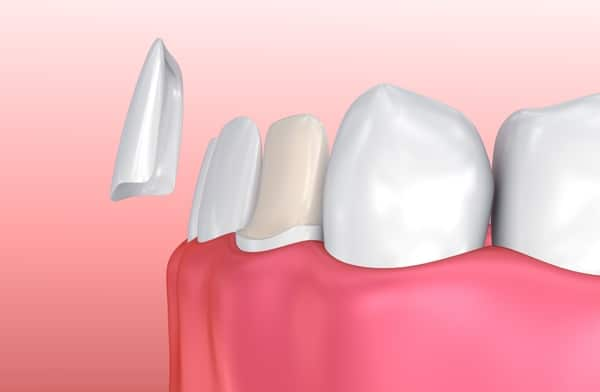 Ceramic Veneers Cover The Front of Your Teeth