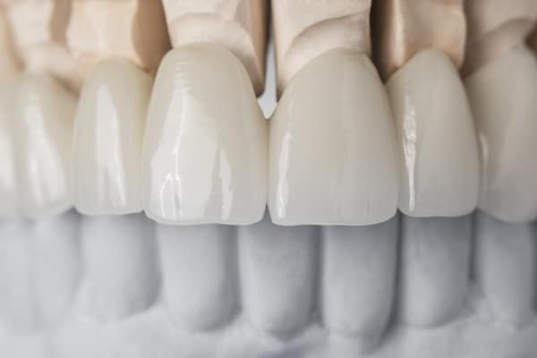 Smile Makeover with Customisable Ceramic Veneers