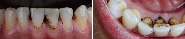 Examples of Extrinsic Teeth Stain