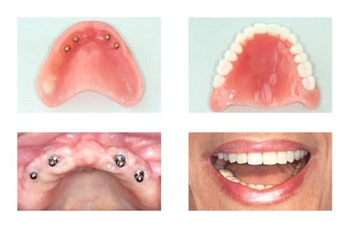 Four Images of Implant Dentures