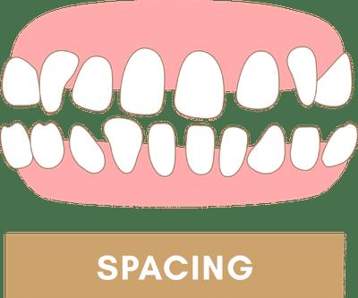 Braces to Fix Excessive Spacing Between Teeth