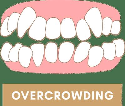 Braces to Fix Overcrowding of Teeth
