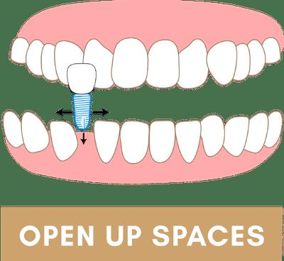 Braces to Open Up Spaces Between Teeth