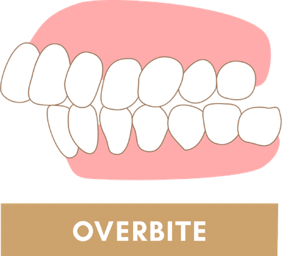Overbite Due to Jaw Discrepancy