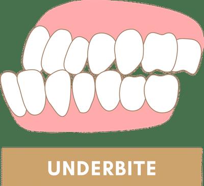 Underbite Due to Jaw Discrepancy
